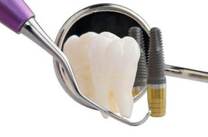 for those that have missing teeth replacing them with dental implants is almost always the recommended course of therapy