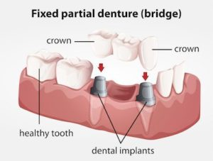 when it comes to replacing missing teeth dental implants make it easier than ever to choose the option thats right for your personal needs